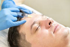 Passes a course of mesotherapy clinic. Man passes a course of mesotherapy clinic Stock Photography