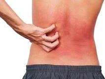Passi l'uomo che graffia la sua parte posteriore di allergia della pelle sopra Fotografia Stock Libera da Diritti