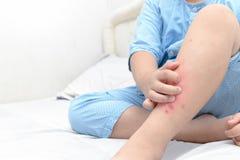 Passi lo scratch, gambe del ragazzo grasso con il punto del gonfiamento Fotografia Stock