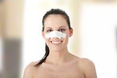 pastic kirurgi för näsa Royaltyfria Bilder
