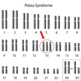 Patau syndrome Stock Image