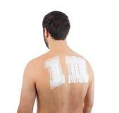 Patch test di allergia della pelle su Bacck Fotografie Stock Libere da Diritti