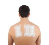 Patch test di allergia della pelle su Bacck Fotografia Stock Libera da Diritti
