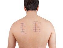 Patch test di allergia della pelle su Bacck Immagine Stock