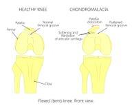 Patella di Chondromalacia Scanalatura femorale appiattita Immagini Stock Libere da Diritti