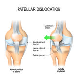 Patellar dislocation Stock Photos