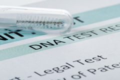 Paternity test result form with buccal swab in test tube. Buccal swab in test tube on paternity DNA test result chart form stock images