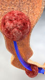 Path of food, digestion, bolus, intestine. Intestinal tract with the passage of the bolus Stock Photo