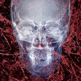 Pathogen abstract background. Photo pathogen abstract with x-ray film background Stock Photography