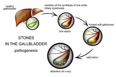 The pathogenesis of gallstones Stock Photography