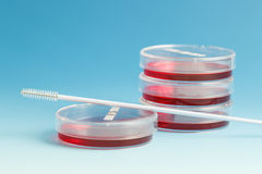 Pathogenic cultures. Cultivation of pathogenic cultures in Petri dishes Stock Image