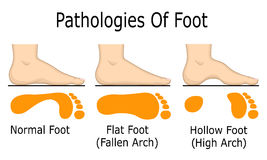 Pathologie van voet Stock Foto's