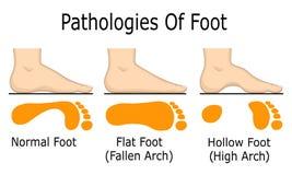 Pathologies of foot Stock Photos