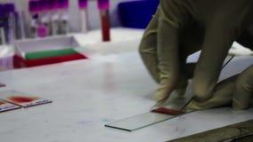 A pathologist gloved hand draws a blood smear on a glass slide stock video