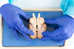 Pathologist holding a cross section of the brain. Gloved hands of a medical technologist or pathologist working in a medical laboratory holding a cross section Stock Image