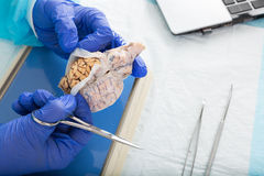 Pathologist opening a tissue sample in the lab. Oratory in order to conduct in vitro or post mortem analysis to diagnose a disease or confirm the cause of death Royalty Free Stock Images