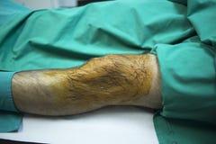 Patiënt in het ziekenhuiskliniek vóór injectie van PRP Stock Foto