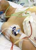 Patiënt in ICU. Ernstig ziek in bed. Royalty-vrije Stock Afbeeldingen