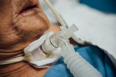 Patient do tracheostomy and ventilator in hospital. Patient asian elder women 80s do tracheostomy use ventilator for breathing help on bed in the hospital Stock Photo