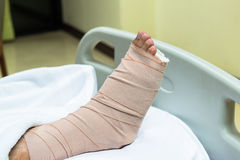 Patient with broken leg in cast and bandage Stock Images
