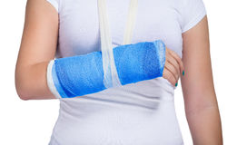 Patient with a cast on arm Royalty Free Stock Image