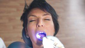 Patient in the chair of the dental clinic. Close-up of the patient in the chair of the dental clinic, the doctor shines blue on the tooth stock video footage
