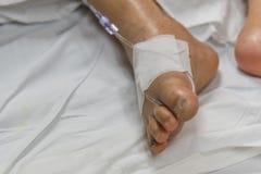 Patient dans l'hôpital avec l'intravenous salin Image stock
