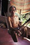 Patient de lèpre au Brésil Image libre de droits
