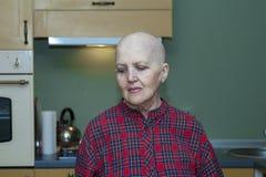 Patient de perte des cheveux après la chimiothérapie images libres de droits