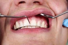 Patient faisant examiner ses dents par le spécialiste images stock