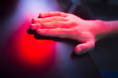 Patient hand in red physiotherapy heat treatment. Under hot light royalty free stock images