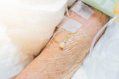 Patient med salthaltigt intravenöst i sjukhuset Fotografering för Bildbyråer