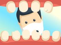 Patient mit der offenen Kehle in der Zahnarztbüroillustration Lizenzfreies Stockfoto