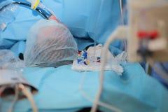 Patient på tabellen under kirurgi Royaltyfria Bilder