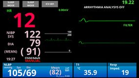 Patient returns from medical death, pulse down then up, ER vital signs monitor