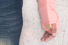 Patient`s Arm were unite with cardboard and elastic bandage. Closed-up. Patient`s Arm were unite with cardboard and elastic bandage Royalty Free Stock Photo