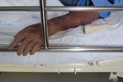 Patient se trouvant sur le lit avec le bouton d'appel d'infirmière Image stock