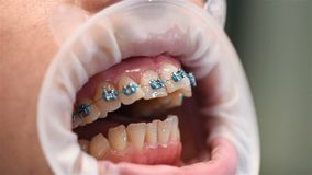 Patient Showing Teeth. With Braces. Extreme Close Up stock video footage