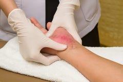 Patient som får en terapimassage på ärr Fotografering för Bildbyråer