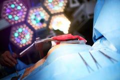 Patient som genomgår kirurgi på tabellen Arkivfoton
