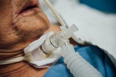 Patient tun Tracheostomy und Ventilator im Krankenhaus stockfoto