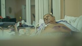 The patient is 72 years old. Extensive polyarthritis. Surgery hip fracture. Real Russian hospital die. A man will die