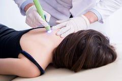 Patienten i kliniken som genomgår laser-ärrborttagning royaltyfri bild
