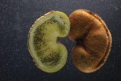 Patologi av det urin- området Kiwi som visar den urin- exkretoriska sjukdomen royaltyfria bilder