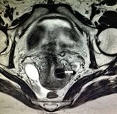 Patologi för äggledaretumörhematosalpinx royaltyfria foton