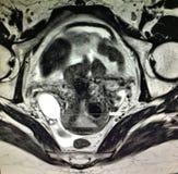 Patologi för äggledaretumörhematosalpinx arkivfoto