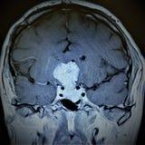 Patologi för hypofys för Mri hjärnexamen royaltyfria bilder
