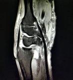 Patologia radiologica di anatomia del polso dell'esame di mri fotografie stock