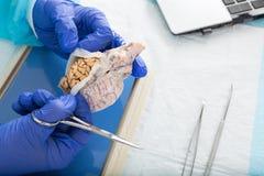 Patologo che apre un campione di tessuto in laboratorio Immagini Stock Libere da Diritti