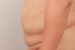 Paunch fat person Stock Photos